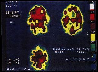 SPECT Scan of MCS Patient's Brain - Our Little Place